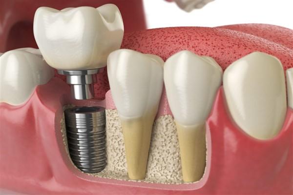 İmplant diş sonrası beslenmenize dikkat etmelisiniz